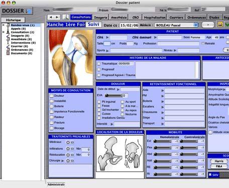 logiciel ortho + : fiche de hanche